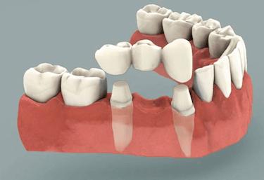 Prótesis dentales 2